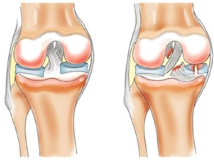 Травматические повреждения. Лечение по Аюрведе