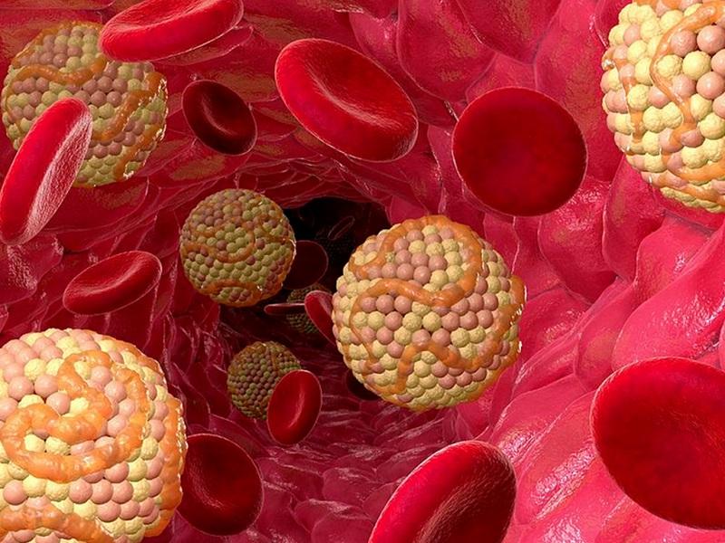 Холестериновая революция: ученые реабилитировали жир и нашли реальный источник атеросклероза