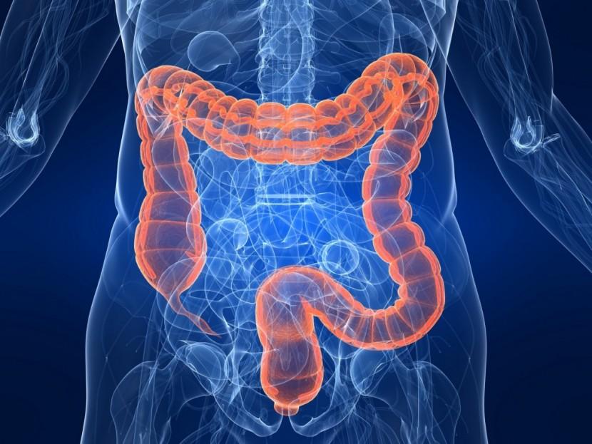 10 признаков того, что ваш кишечник переполнен токсинами, которые вызывают лишний вес