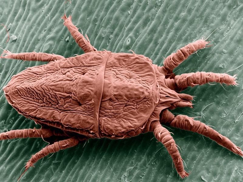 10 симптомов, которые указывают на то, что у вас в организме паразиты