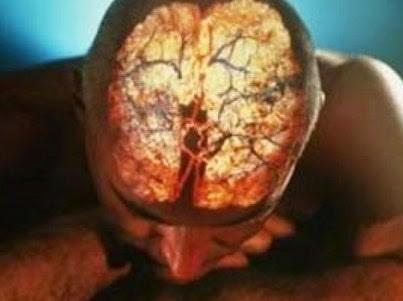 Ученые назвали пять основных причин гибели клеток головного мозга человека
