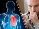 Как выгнать слизь и мокроту из горла и груди: 5 средств, которые работают